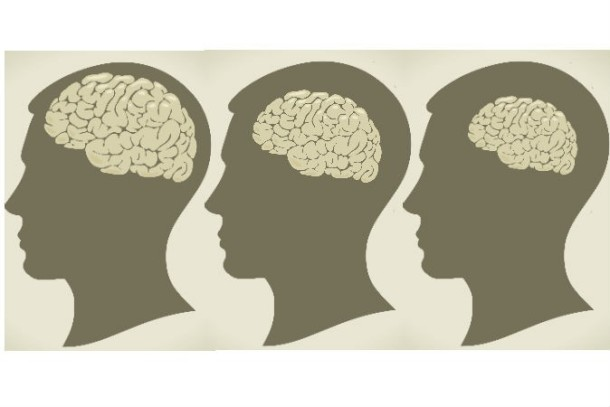 brain-shrink-674x450